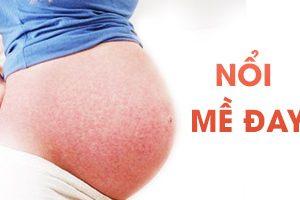 Cách điều trị chứng nổi mề đay cho phụ nữ mang thai