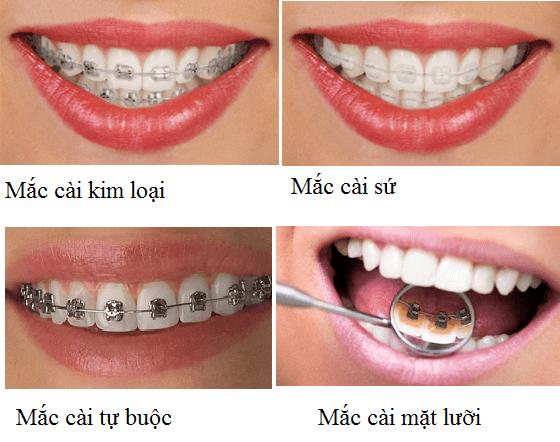 Có nên niềng răng trả góp hay không?