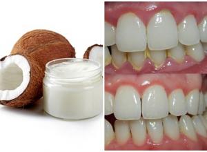 3 Cách lấy cao răng bằng dầu dừa hiệu quả và đơn giản tại nhà