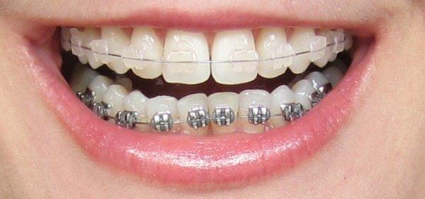 [Hỏi đáp] Nên niềng răng sứ không?