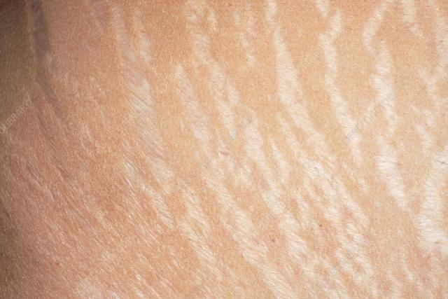 Rạn da: Đặc điểm, nguyên nhân, cách ngăn ngừa và điều trị